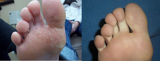 Warts Before And After 2 5 Fluorouracil Plus 16 Salicylic Acid Cream