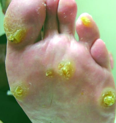 Keratosis Plantar Treatment Intractable Plantar Keratosis